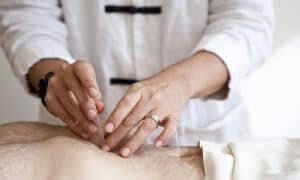 Woman applying acupuncture needles