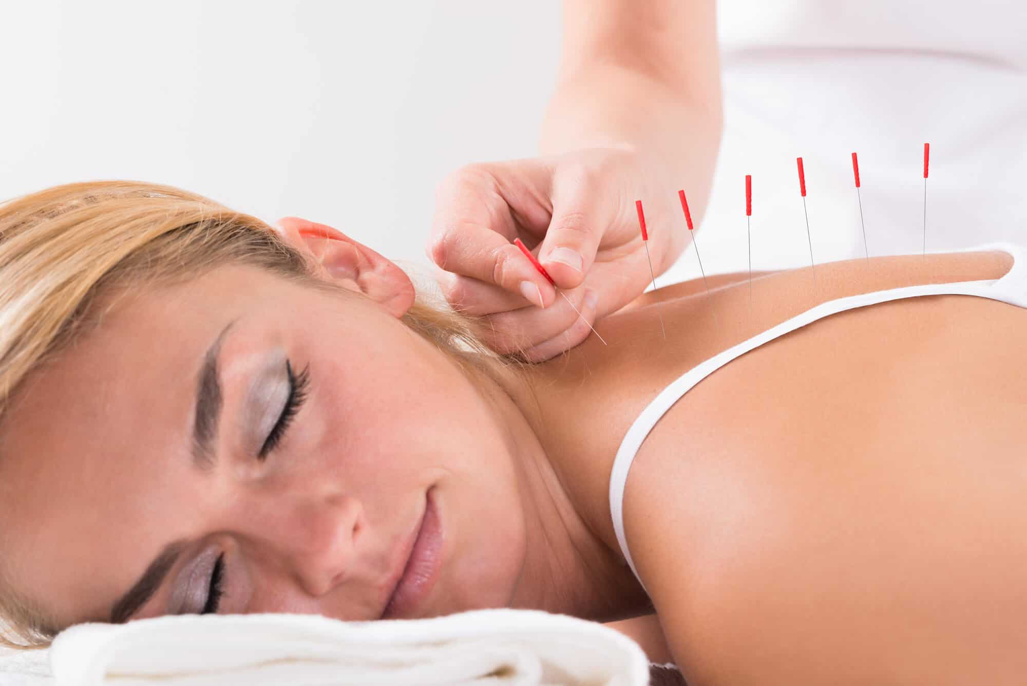 Hand Performing Acupuncture Therapy On Customer's Back