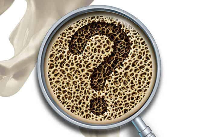Bone Medical Questions